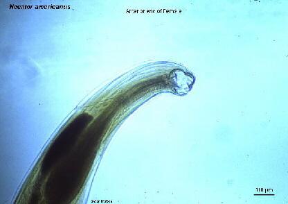 Necator Americanus Hookworm New World